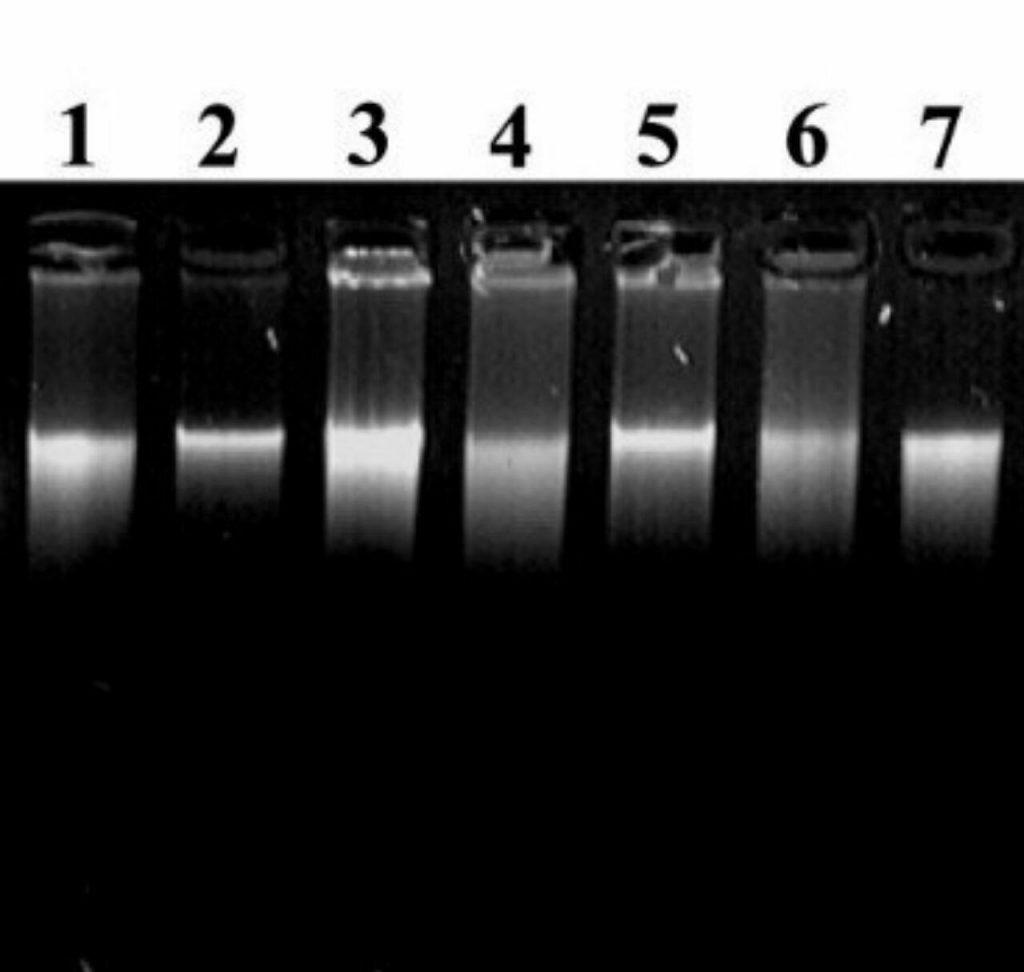 تصویر بالا تصویری از الکتروفورز مولکولهای DNA استخراج شده از گیاهان مختلف میباشد.