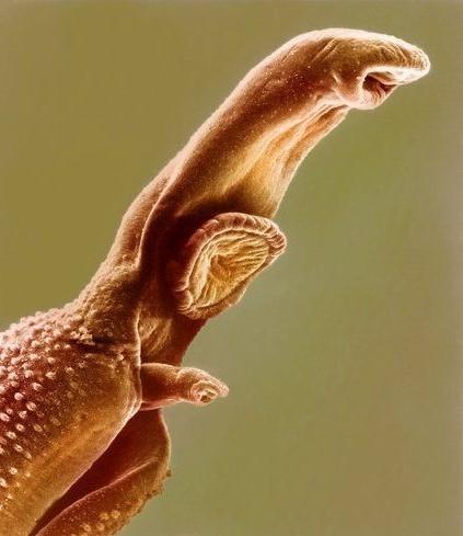 تصویر میکروسکوپی ازترماتود شیستوزوما که بوسیله بادکشهای عضلانی وفنجان مانند خود به میزبان میچسبد. بادکش دهانی در انتهای قدامی و بادکش شکمی ( استابولوم بزرگتر ) در قسمت خلفی بادکش دهانی دیده میشود.