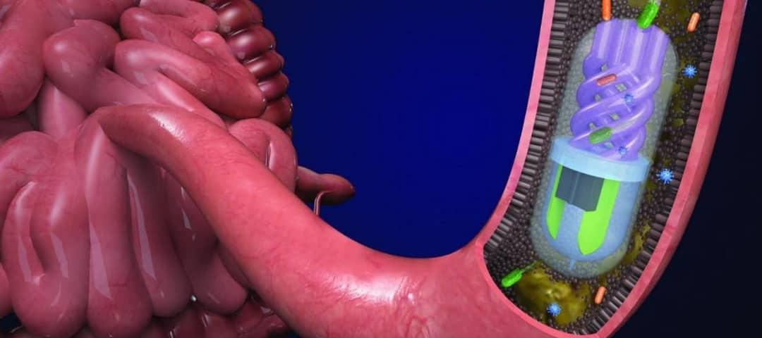 ساخت کپسولی که قادر است باکتریهای موجود در روده را جمع آوری کند.